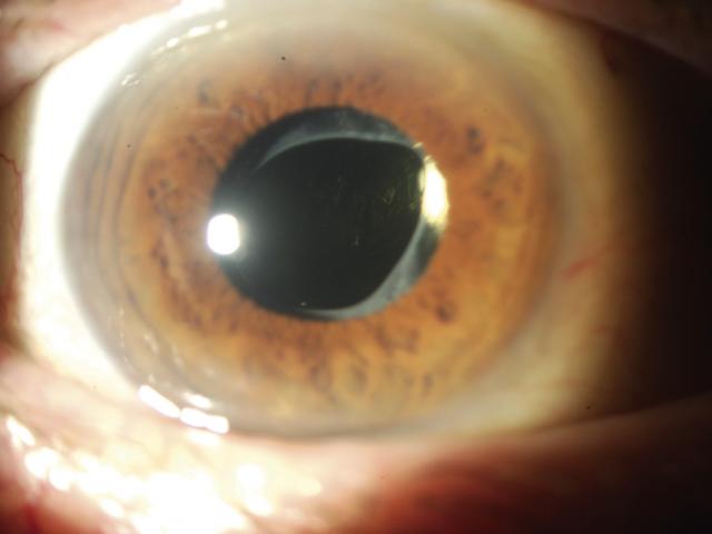 Catarata: estudo apresenta solução para complicação que atinge 70 milhões de pessoas - D'Olhos Hospital Dia