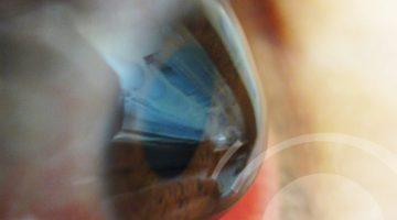 Lentes de contato e ceratocone - D'Olhos Hospital Dia