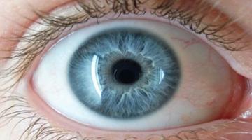 Íris - D'Olhos Hospital Dia