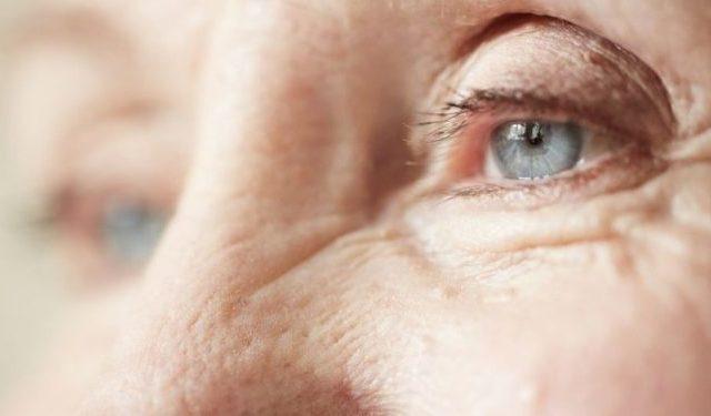 Catarata: oftalmologistas de São José do Rio Preto-SP apresentam solução para evitar complicação após cirurgia - D'Olhos Hospital Dia