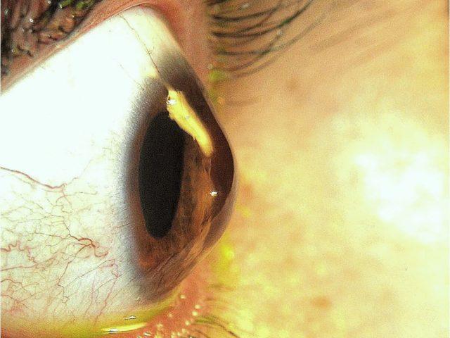 Campanha alerta sobre o Ceratocone - D'Olhos Hospital Dia