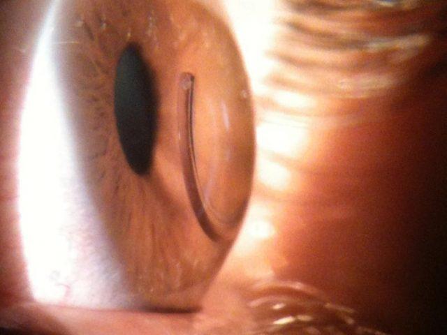 Cerca de 150 mil pessoas adquirem ceratocone por ano do Brasil - D'Olhos Hospital Dia